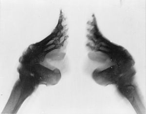300px-bound_feet_x-ray