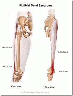 knee-ili
