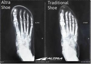 your-feet-in-wide-vs-narrow-shoes-great-visual-from-altra-running-21