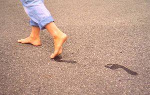 300px-healthy_feet