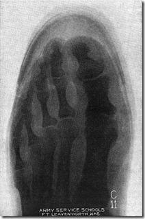 Munson X-Ray