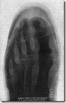 Munson-X-Ray3