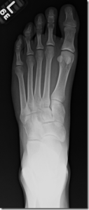 metatarsal-stress-fractures-in-runners-part-ii-thoughts-from-a-radiologist-21