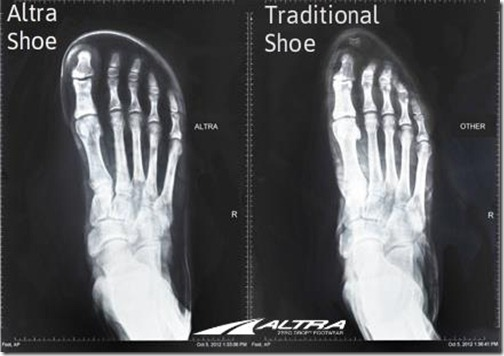 Altra Shoe X-Ray
